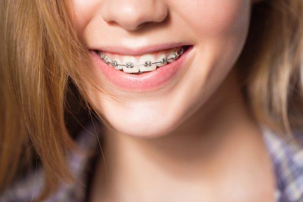Nên niềng răng hô ở độ tuổi từ 5 - 10 hoặc từ 18 - 25 là lý tưởng nhất