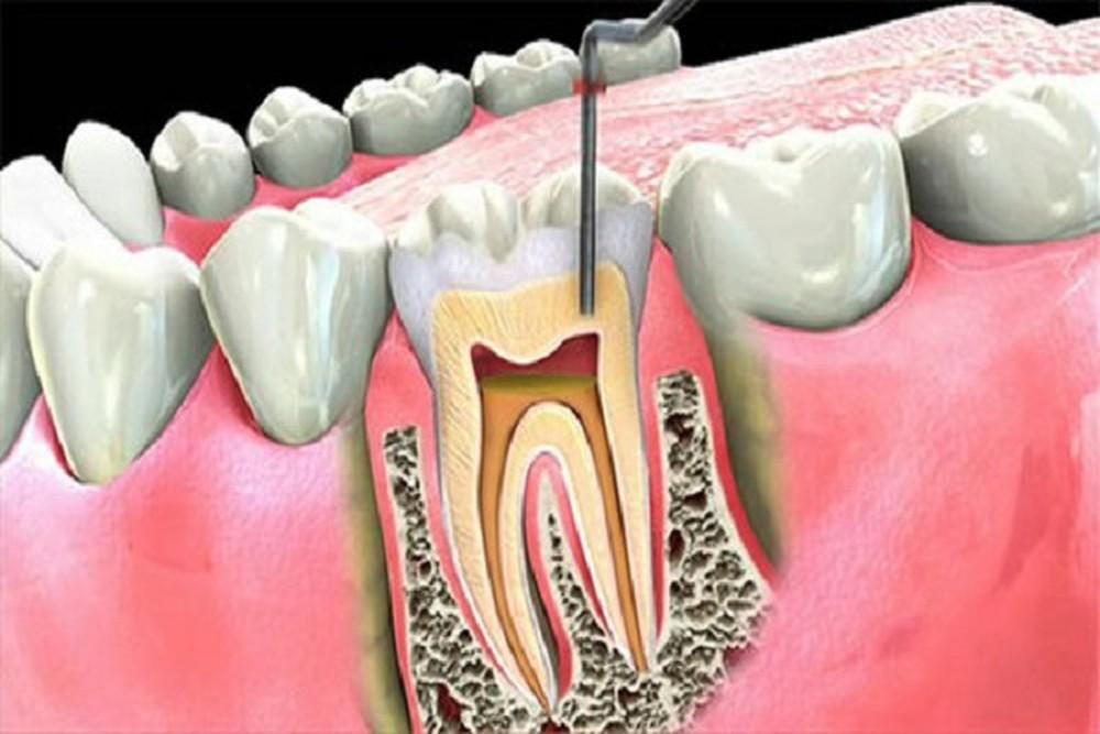 Nguyên nhân chính dẫn đến viêm tủy răng