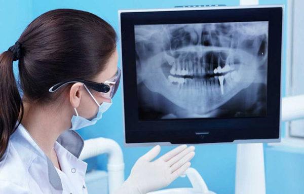 Những điều cần trang bị khi thực hiện chụp x quang răng