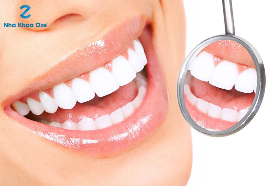 Những đối tượng có thể sử dụng phương pháp tẩy trắng răng