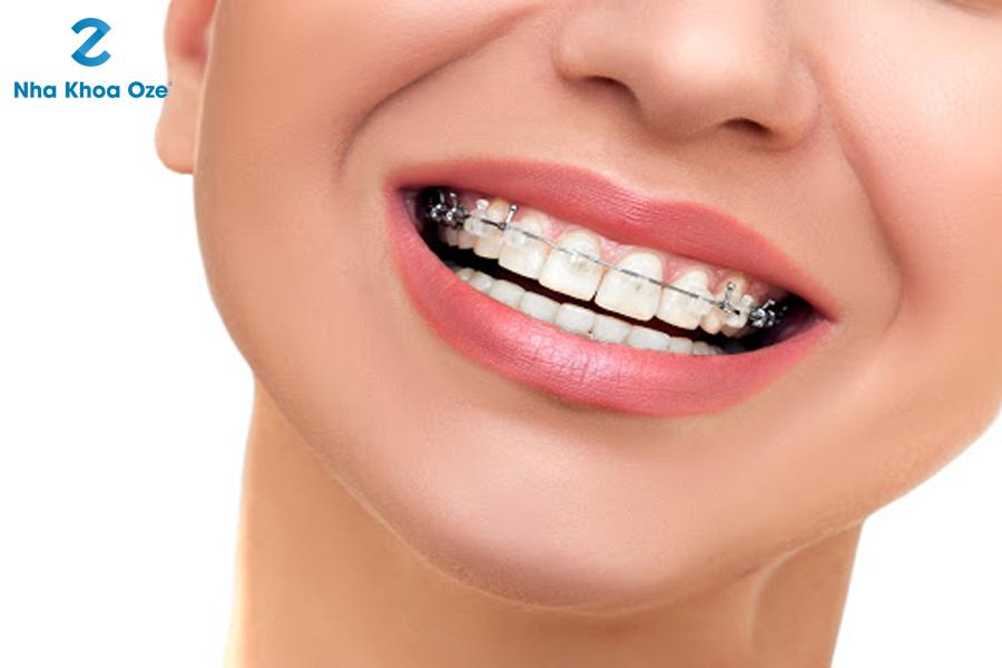 Niềng răng một hàm có được không?