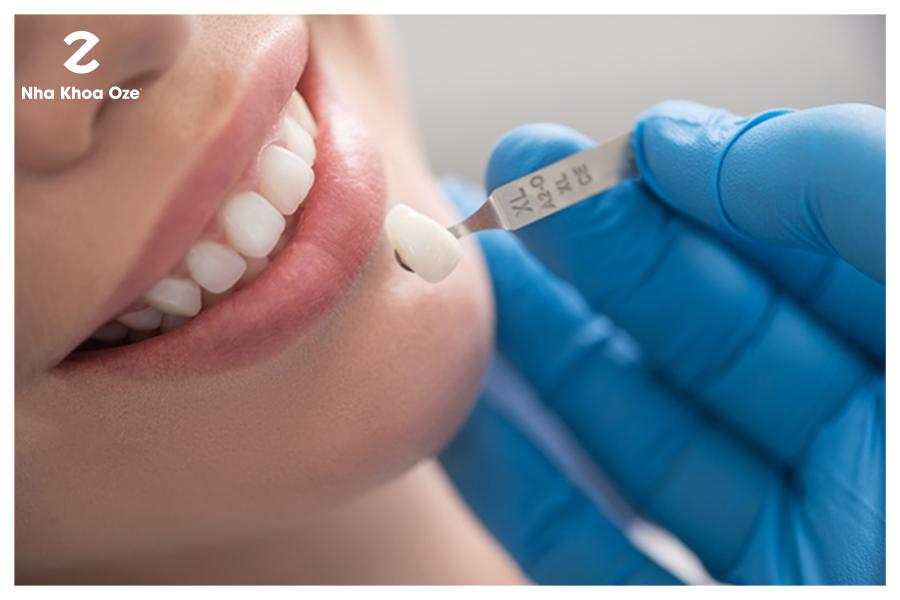 Tiến hành thử răng sứ và bọc răng sứ cố định