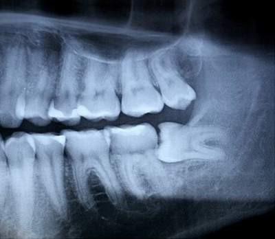 Răng khôn mọc lệch do không có đủ chỗ để được nhô ra