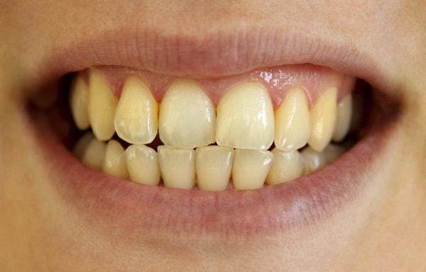Răng mất thẩm mỹ do tình trạng ố vàng, xỉn màu