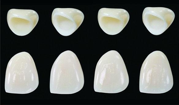 Răng sứ venus được sử dụng tại Nha khoa Oze
