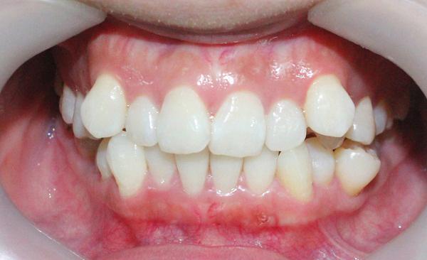 Răng xấu, mọc lộn xộn khiến bạn tự ti trong giao tiếp