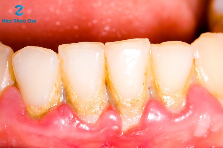Cao răng hình thành trên chân răng