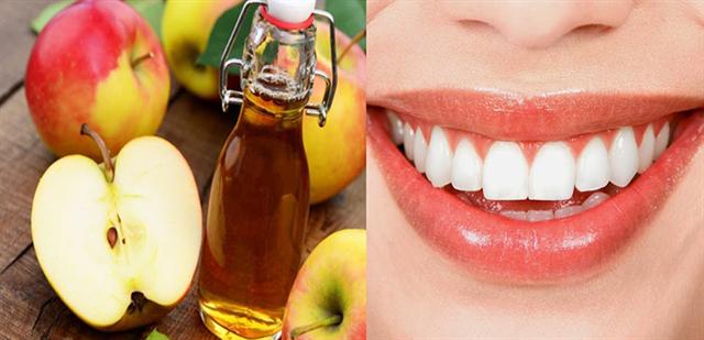 Sử dụng giấm táo để tẩy trắng răng