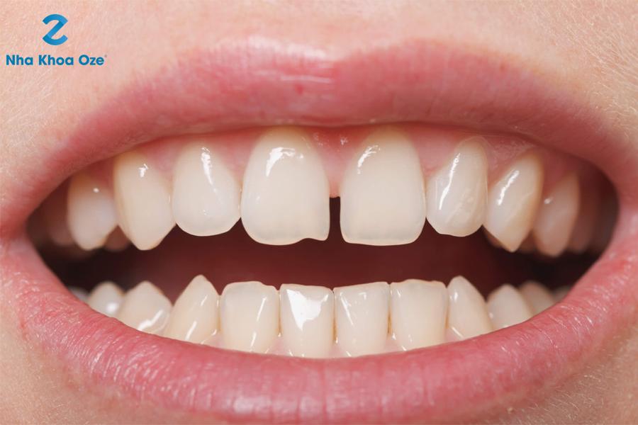 Hàn răng bị thưa
