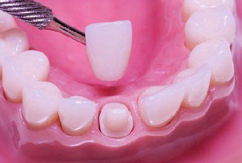 Thay mão răng sứ để loại bỏ các mảng bám đen