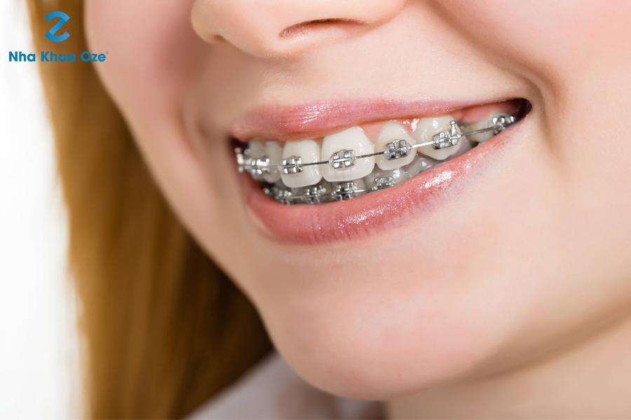 Thời gian niềng răng của mỗi người là khác nhau