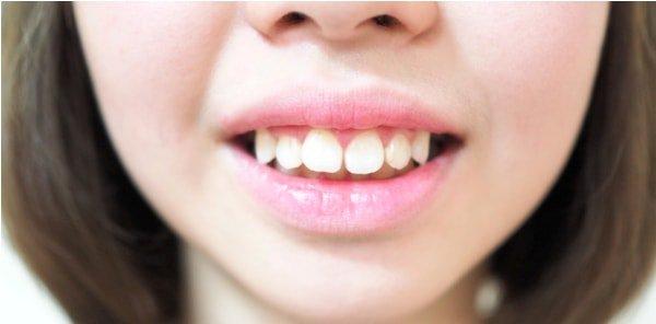 Răng hô gây mất thẩm mỹ và ảnh hưởng đến chức năng nhai cắn