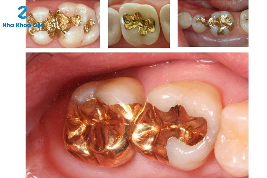 Trám răng bằng vật liệu vàng và kim loại quý