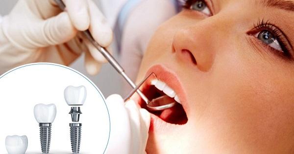 Trồng răng implant giúp khôi phục chức năng của răng và hiệu quả thẩm mỹ
