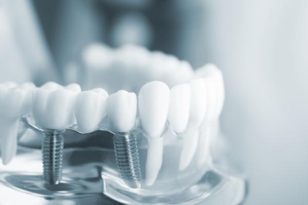 Trồng răng implant thay thế cấu trúc của răng thật