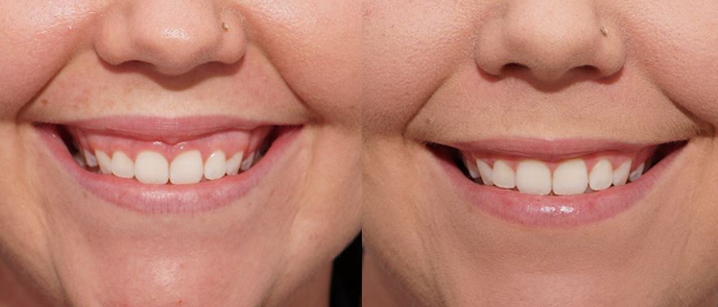Trước và sau khi điều trị cười hở lợi