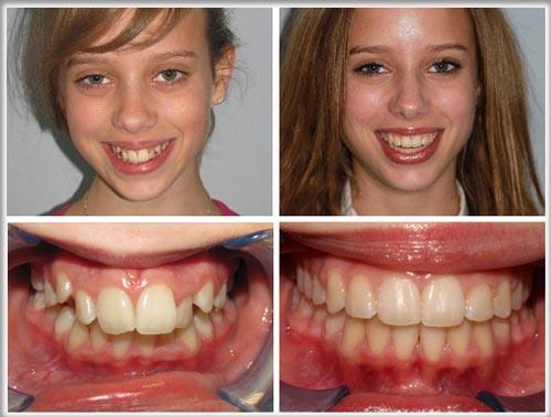Trường hợp răng quá to, răng chèn lên, mọc xô lệch, gây răng vẩu