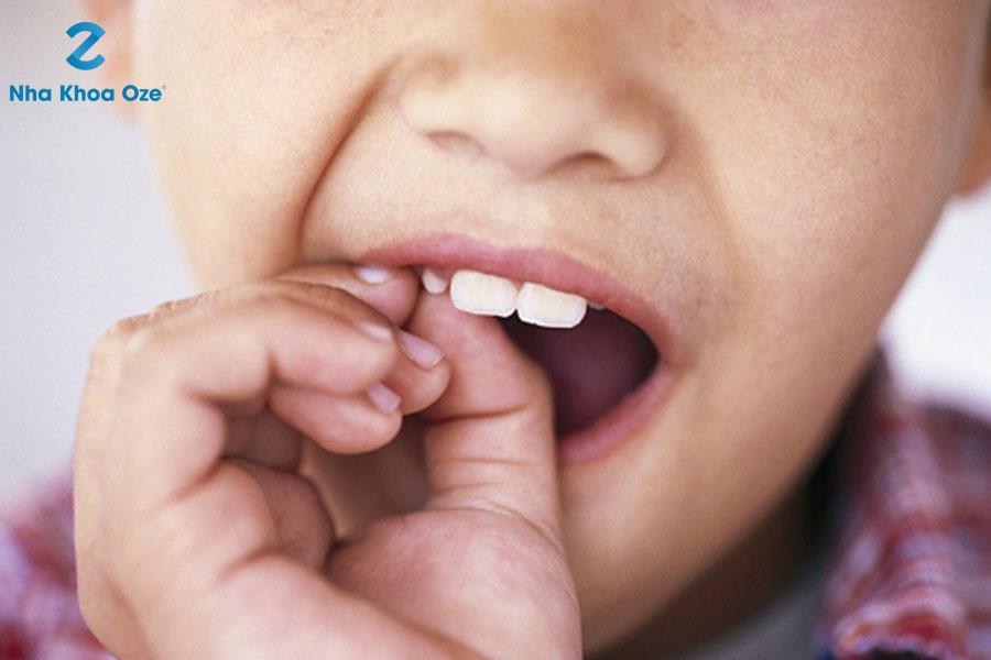 Răng sữa lung lay lâu không thì có thể nhổ được