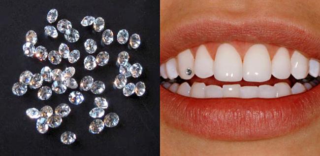 Việc đính đá lên răng có làm ảnh hưởng gì đến sức khỏe răng miệng không?