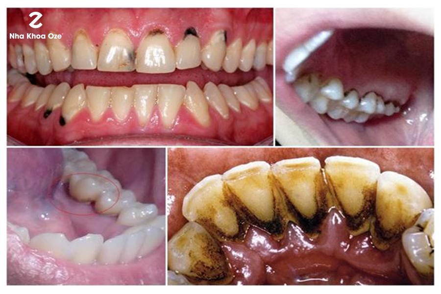Khi răng đã trong tình trạng ố vàng nặng thì không nên làm trắng răng bằng vỏ chuối