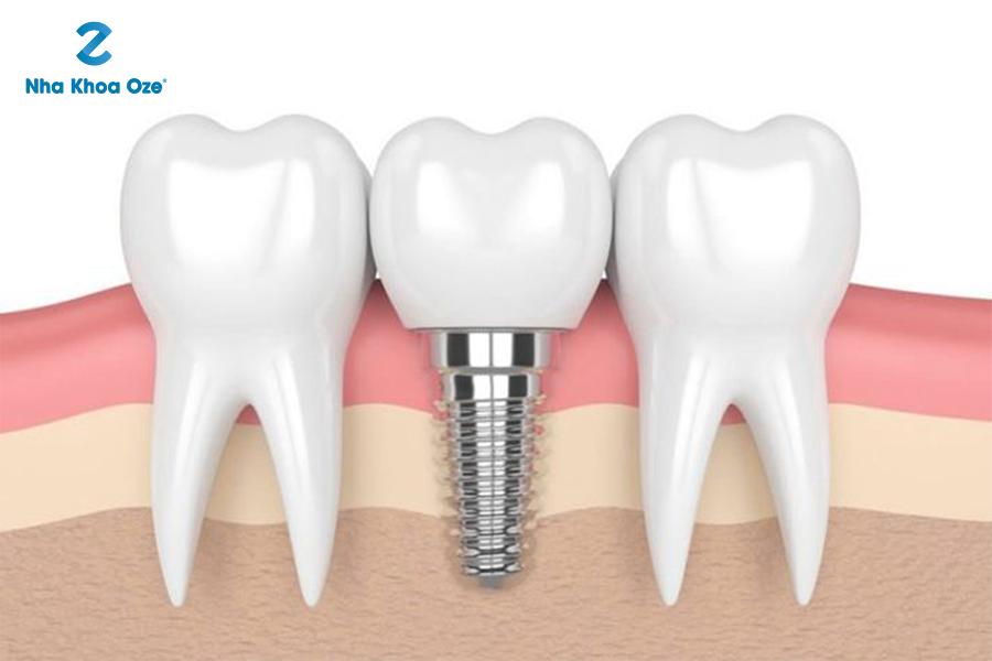 Một số khuyết điểm của trồng răng implant