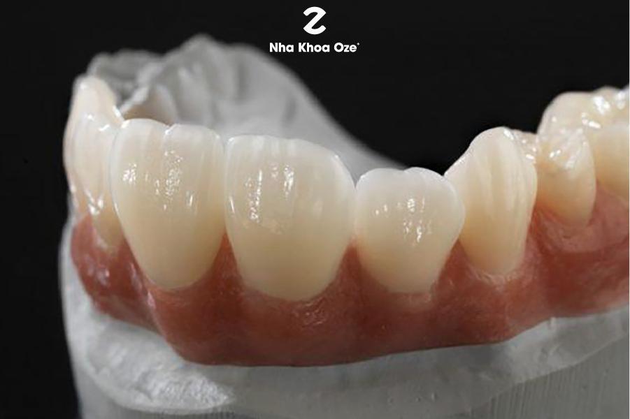 Răng sứ thẩm mỹ tăng vẻ đẹp cho nụ cười của bạn