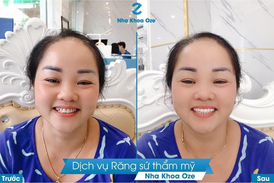 Trước và sau khi làm răng sứ thẩm mỹ tại Nha khoa Oze